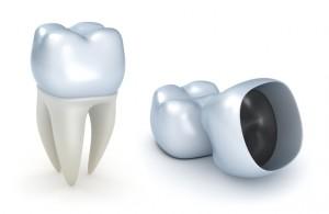 dental crowns in State College