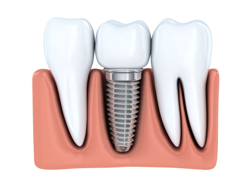 Learn about the benefits of getting a dental implant in State College over other treatments.
