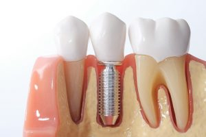Representation of dental implant