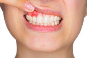 woman's thumb exposing irritated gums
