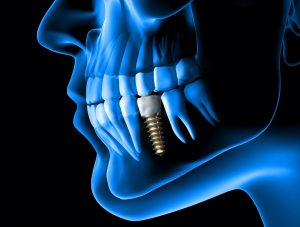 digital image of dental implant